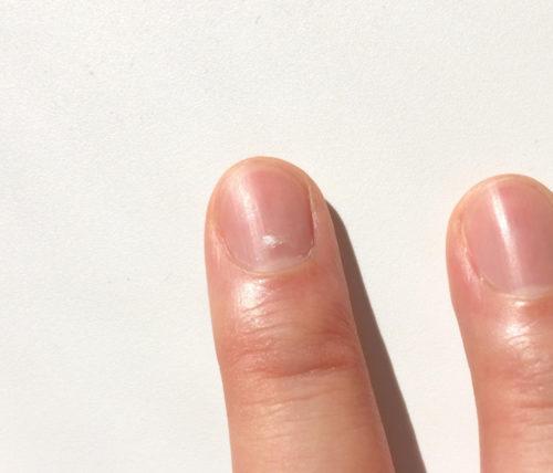 爪の白い点が中指に出た時の意味!旅行や引越しで開運?理由を解説