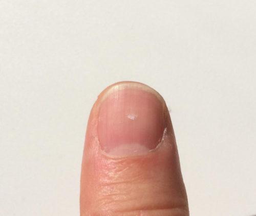 爪の白い点が親指に出る意味!恋人の出現や子宝に恵まれる理由を解説